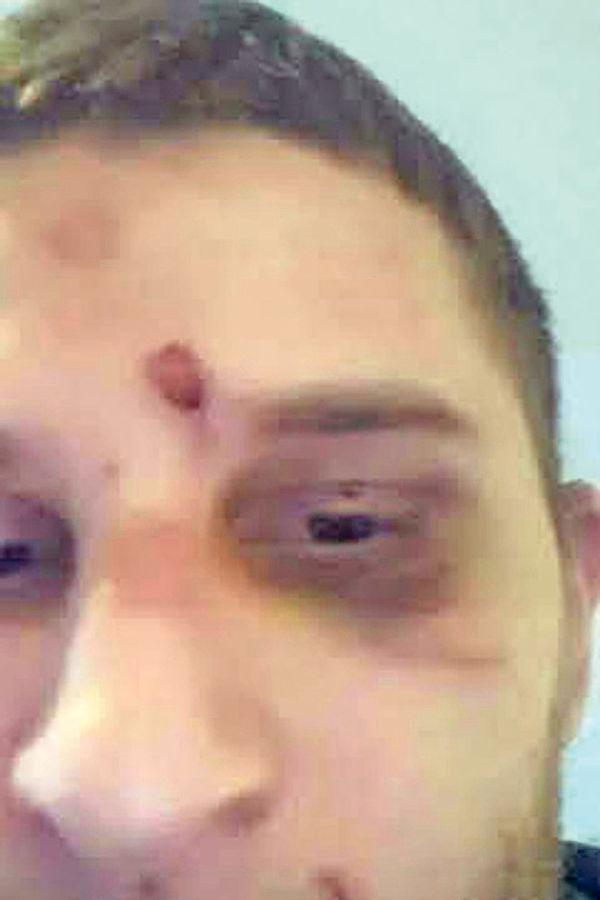 Žrtva... Novaković je zadobio posekotine po glavi, povredu nosa i levog oka