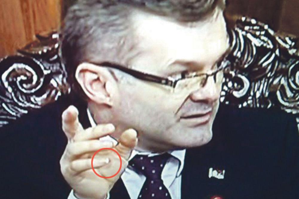 DŽIBER: Bečić pustio da mu raste nokat na malom prstu