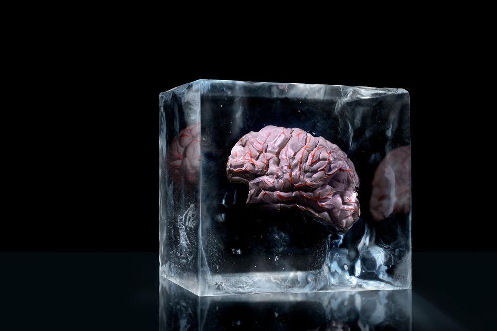(VIDEO) BUDUČNOST JE STIGLA: Naučnici po prvi put zamrzli i odmrzli mozak bez oštećenja