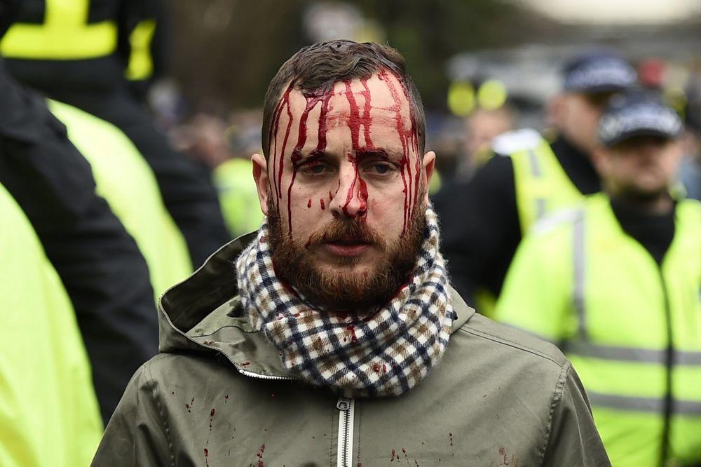 (VIDEO) KRV TEČE LONDONOM: Navijači Totenhema i Arsenala sukobili se pre meča