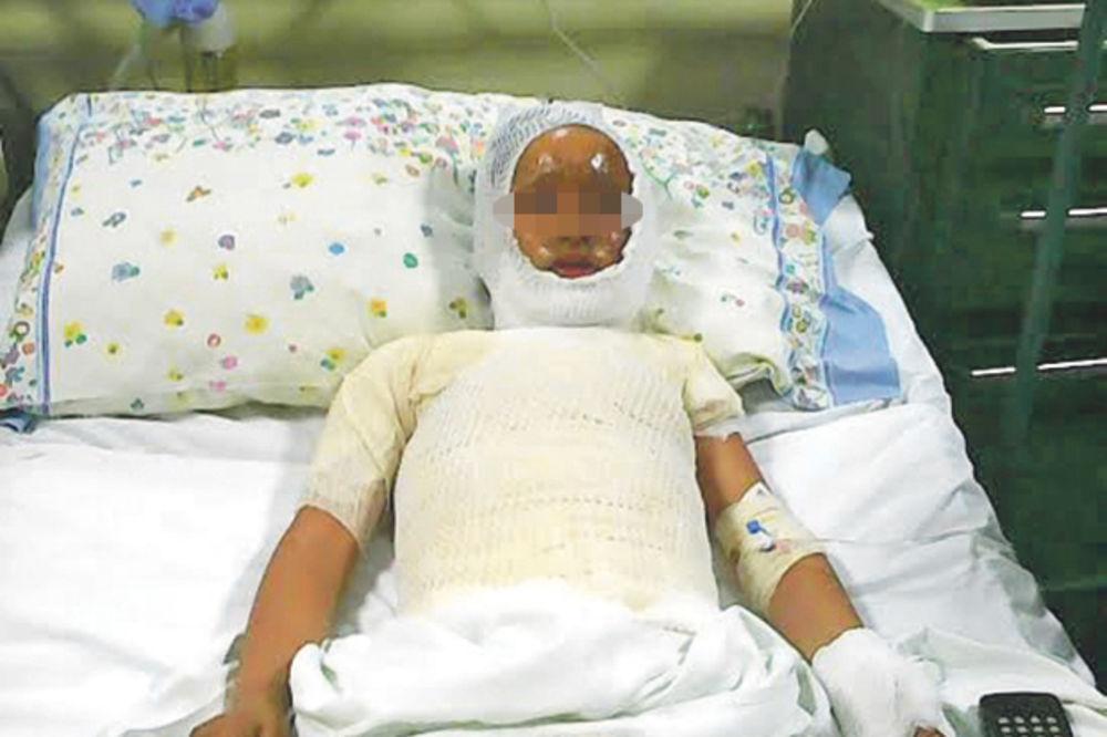 KOMŠIJA DEČAKA (9) POLIO BENZINOM: Na meni je sve gorelo, vrištao sam od bolova!