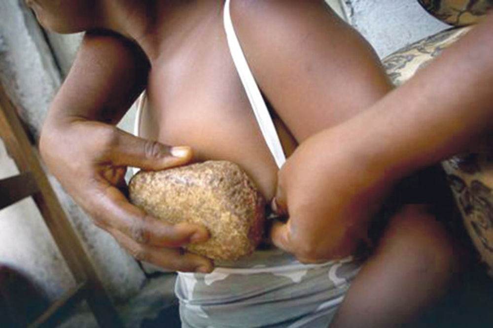 HOROR: Devojčicama peglaju grudi vrelim kamenjem