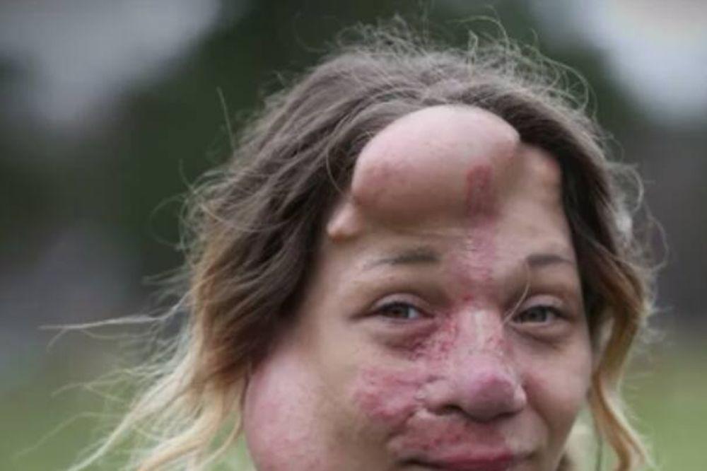 (FOTO) Žalila se na jaku glavobolju, a onda su doktori otkrili nešto jezivo