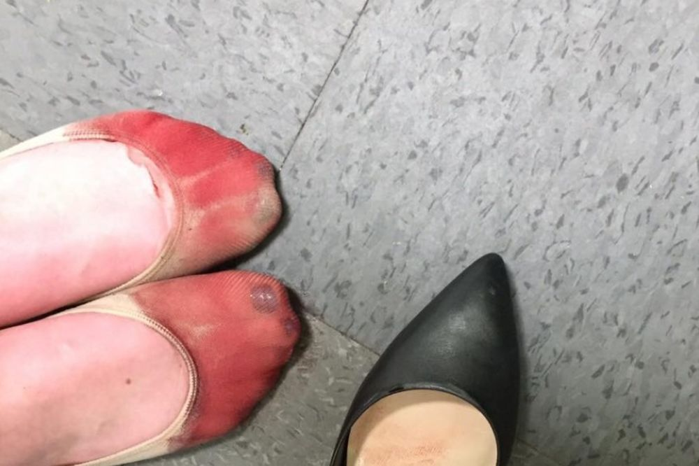 (FOTO) GAZDA IZ PAKLA: Krvava stopala konobarice zgrozila su internet