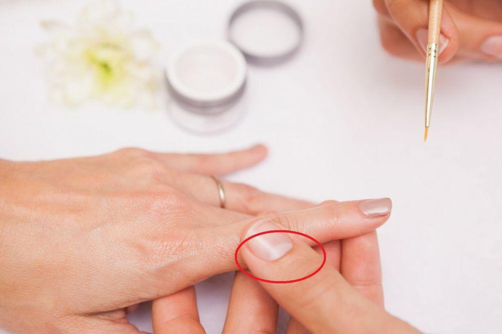 DOBRO OBRATITE PAŽNJU: Ako nemate polumesece na noktima, ODMAH idite kod lekara!