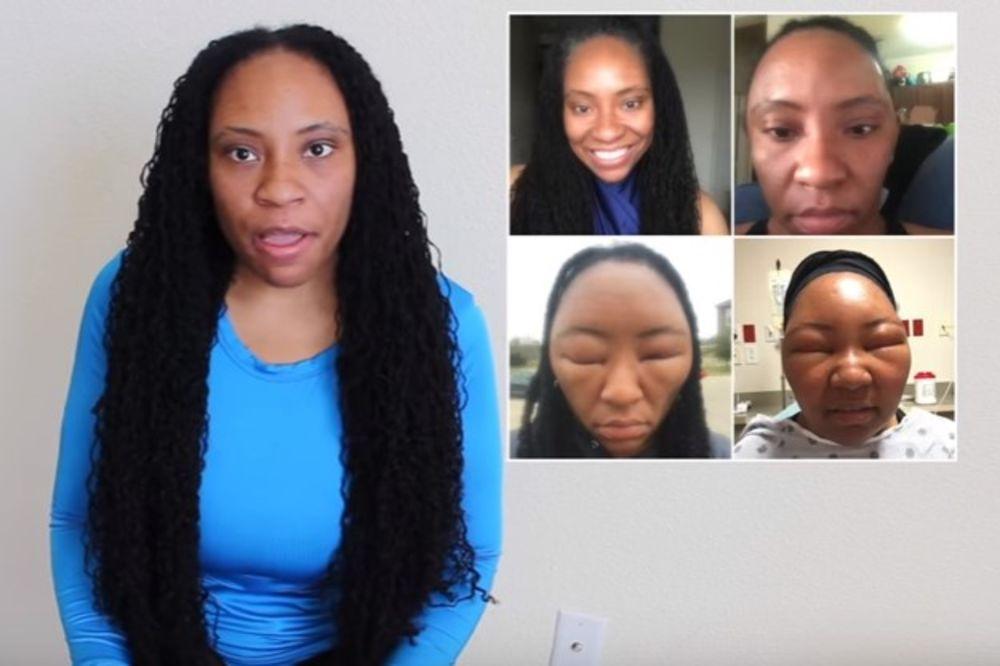 (VIDEO) FRIZURA JE UMALO KOŠTALA ŽIVOTA: Doživela je jaku alergijsku reakciju prilikom farbanja, i..
