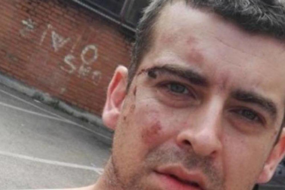 (AUDIO) BANJALUČKOG ADVOKATA PRETUKLA POLICIJA: Vezali ga lisicama i gazili po licu