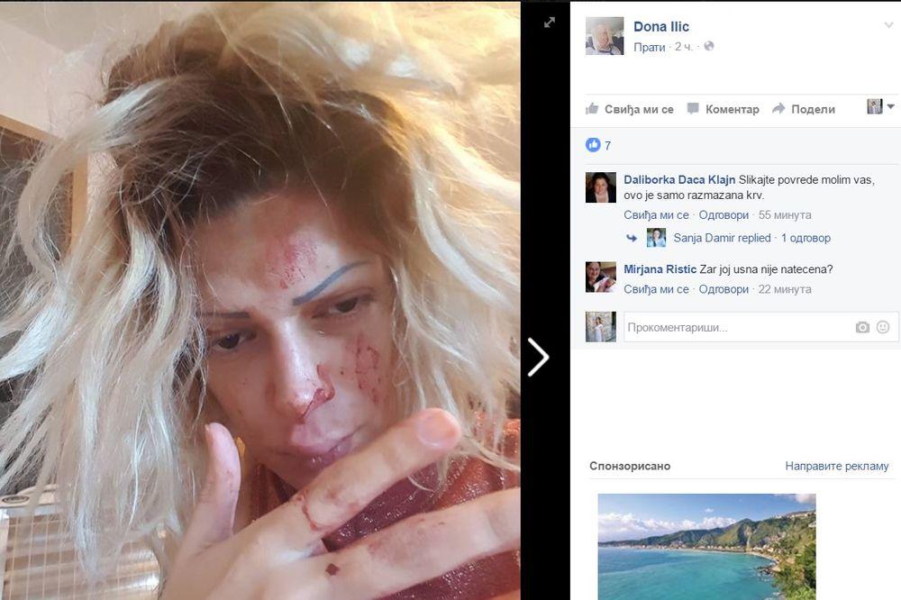 (UZNEMIRUJUĆE FOTOGRAFIJE) KRV NA SVE STRANE: Srpska pevačica brutalno pretučena?