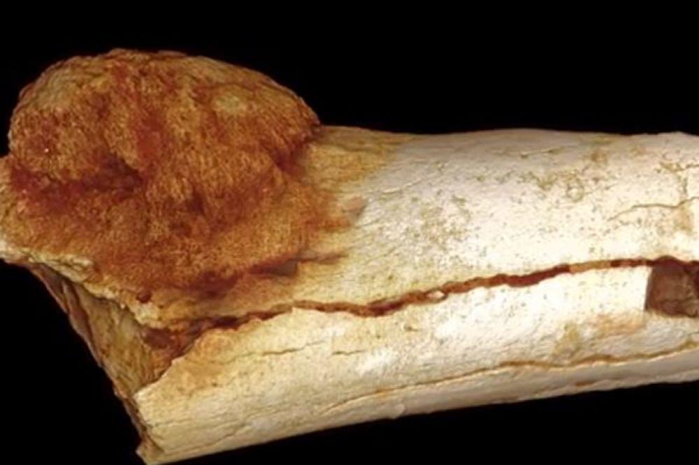 Najstariji karcinom pronađen na kosti fosila starog 1,7 miliona godina