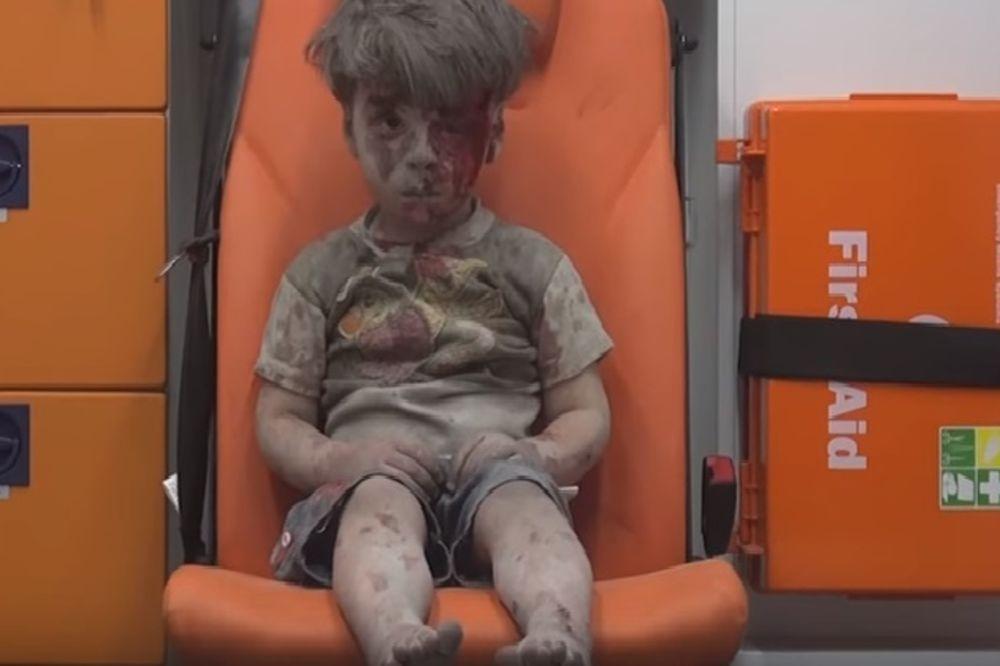 SAM U SUROVOM SVETU: Slika dečaka (5) iz Sirije umazanog krvlju i prašinom rasplakala je svet