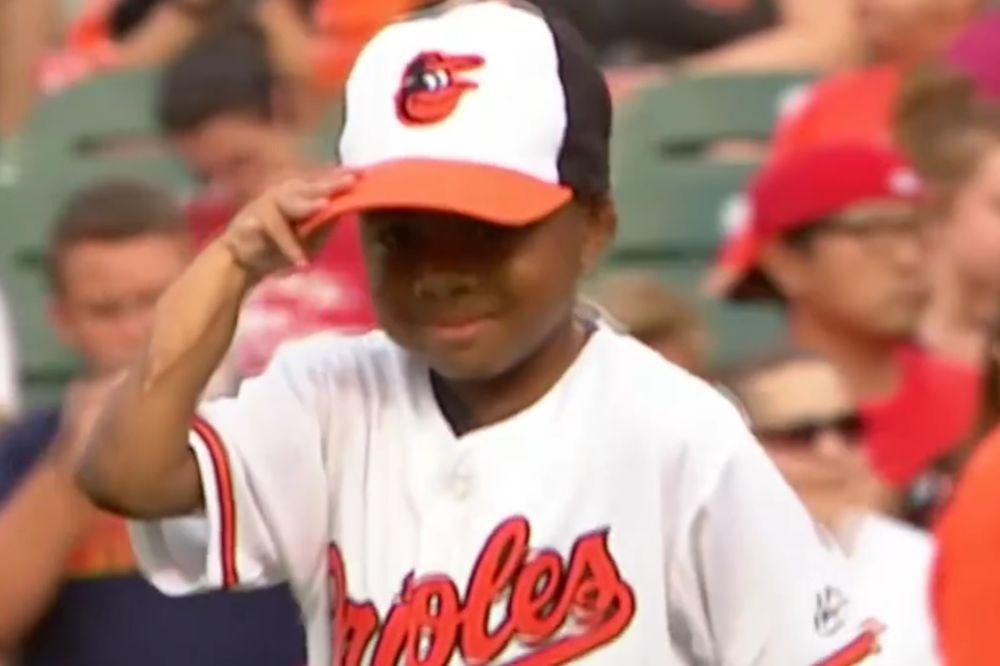 (VIDEO) MALI HEROJ: Posle uspešne transplatacije šaka ovaj mališan želi da se bavi sportom