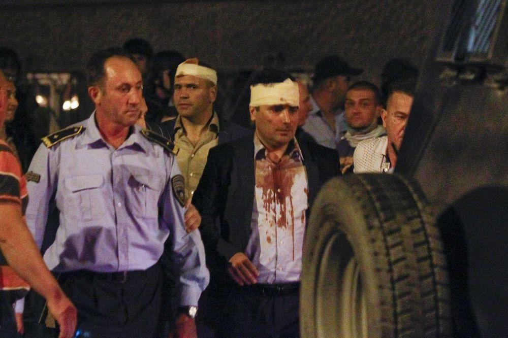 Zaeva pretukli batinaši sa fantomkama (Foto: Rojters)
