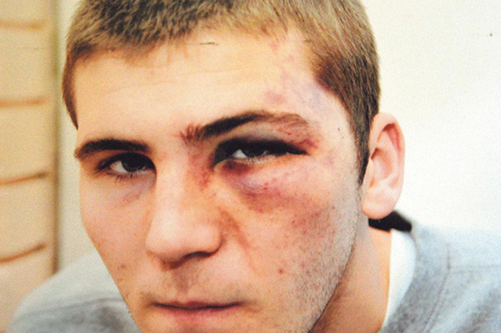 Žrtva torture: Dragan Milošević
