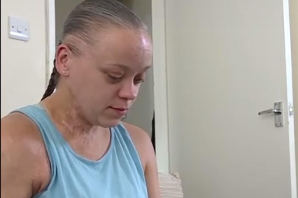 (VIDEO, FOTO) UNAKAZILI SU JE, PREŽIVELA JE KOŠMAR: Tari je nepoznat dečak (15) pokucao na vrata i bacio kiselinu u lice!