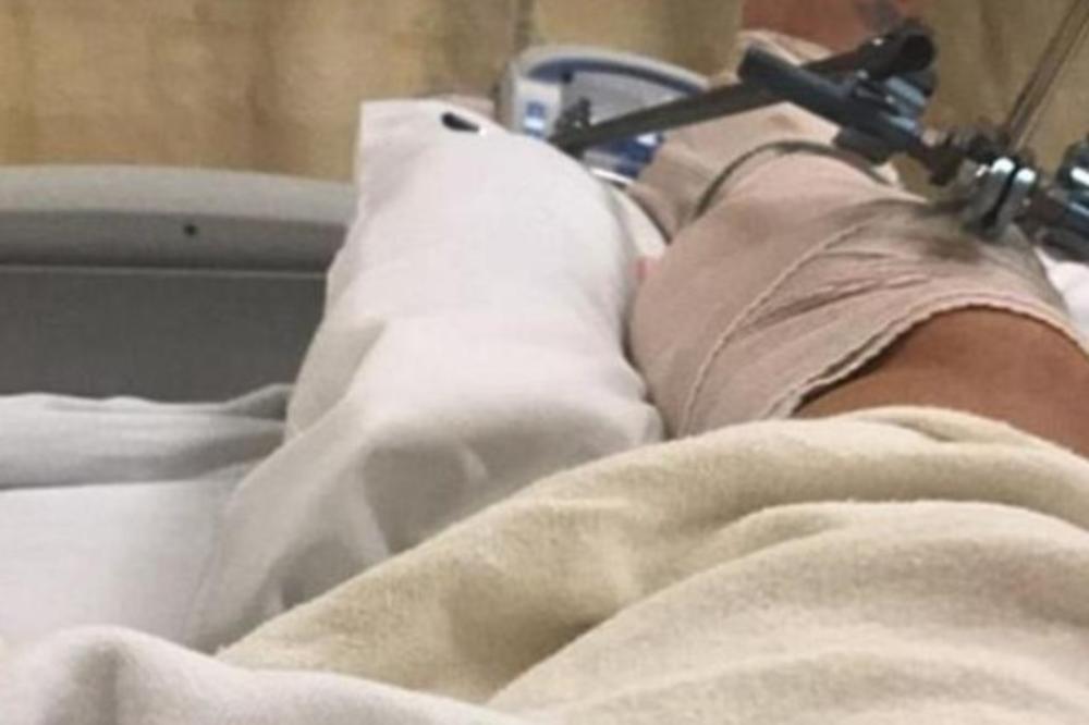 (FOTO) HOLIVUDSKI GLUMAC ZABRINUO FANOVE: Slomio nogu u bizarnoj nesreći