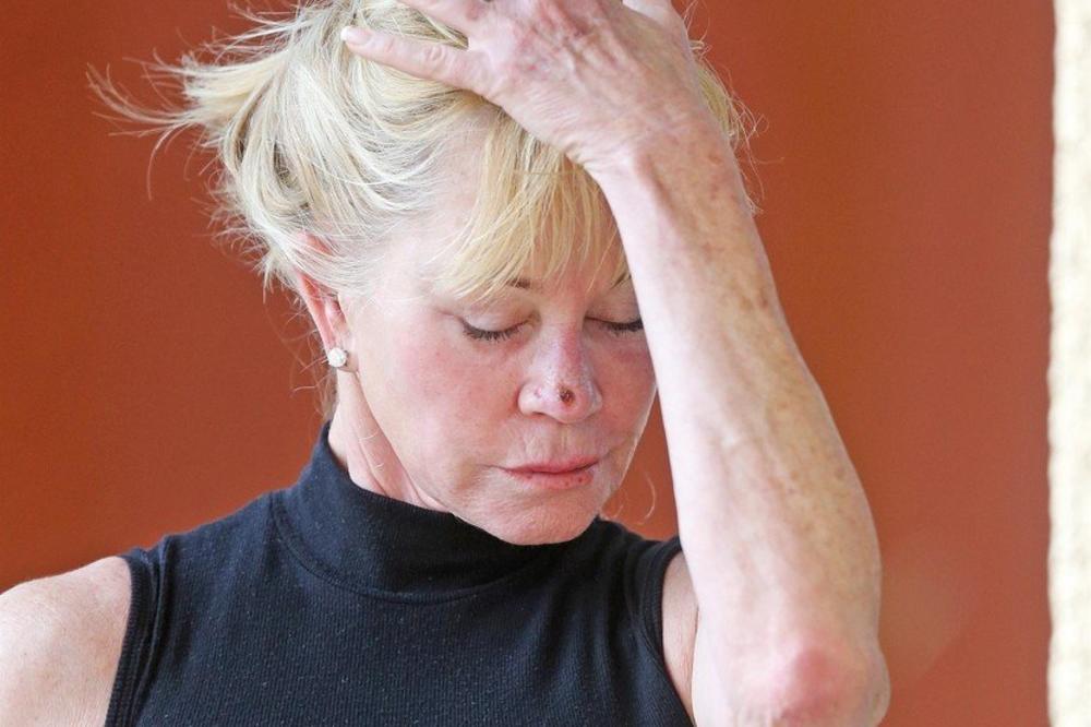 (FOTO) MELANI GRIFIT OPET VODI BITKU S RAKOM KOŽE: Glumica uslikana sa ranom na nosu