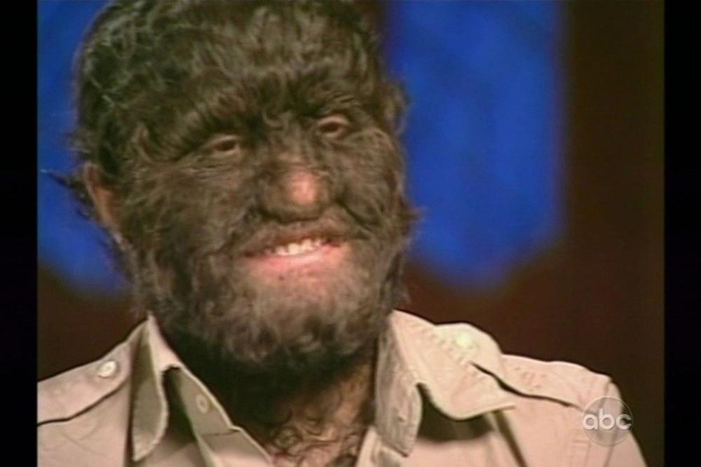 ZAMISLI frajera sa dugom, crnom kosom Ako duga kosa nije tvoj đir, možda su to dlakava prsa ili brada?