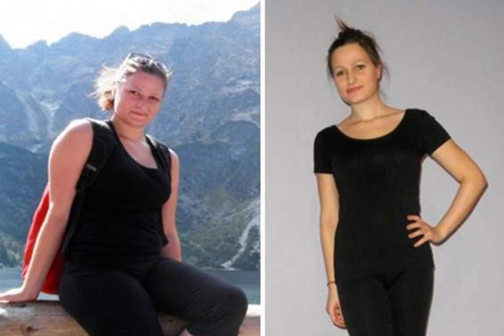 Četiri kratke priče koje niste znali o liposukcijska dijeta