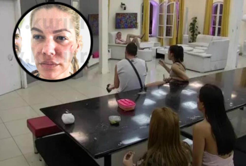 (VIDEO) RIJALITI UČESNICI OSTALI U ŠOKU: Ovako su reagovali kada su im pokazali fotke Nataše Bekvalac u modricama!