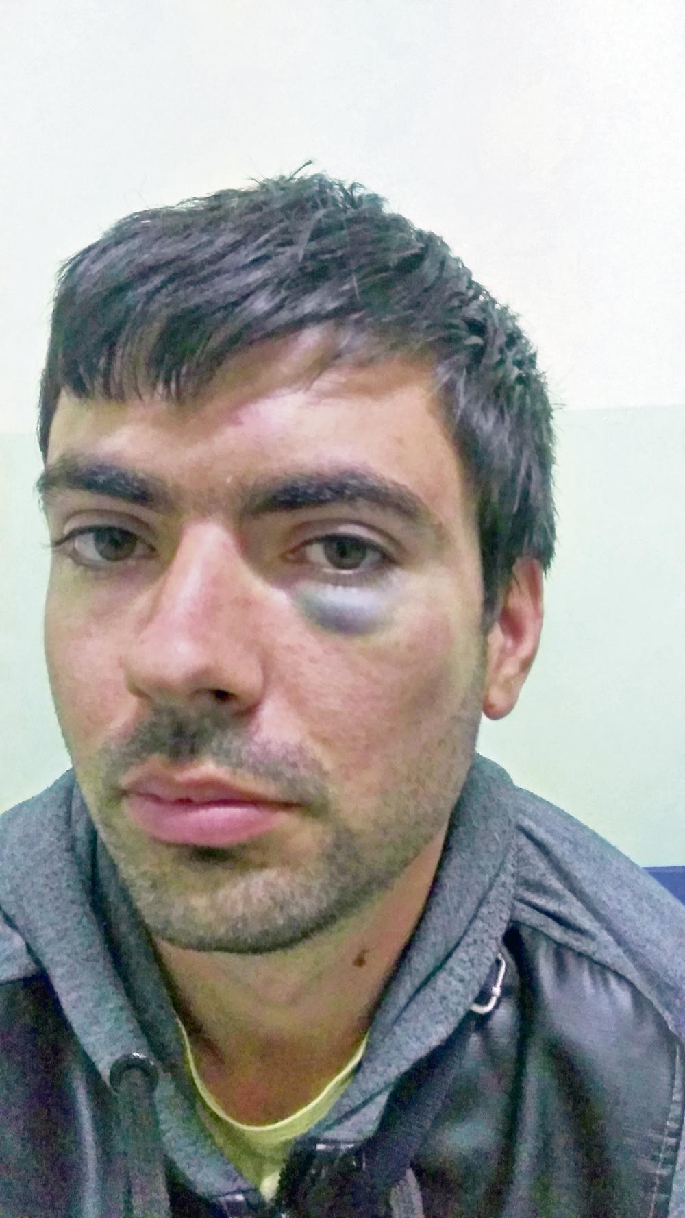 Povređeni Danijel Savić