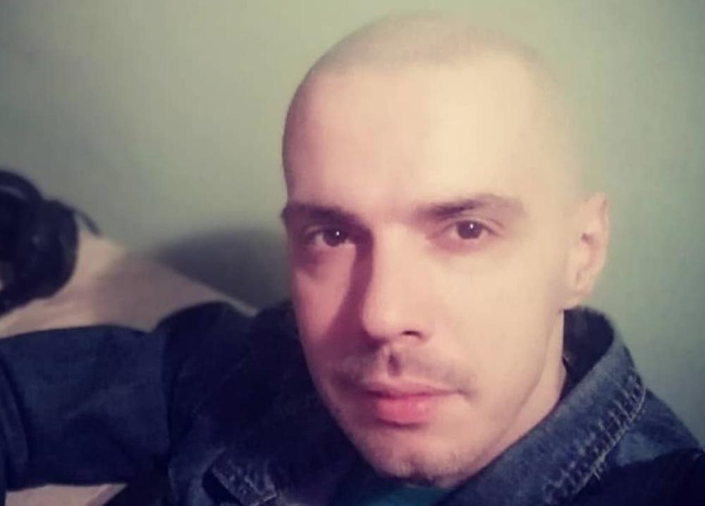 ALARMANTNO! PRETUČEN BOJAN TOMOVIĆ: Pred celom Srbijom govorio je svojoj bolesti i razvodu, a SADA I POVREDE! PEVAČU LICE UNAKAŽENO! (FOTO)