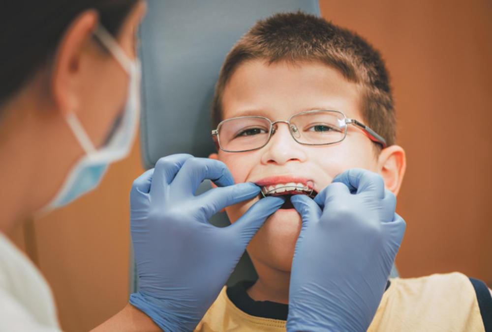 3 pravila za nošenje aparata za ispravljanje zuba