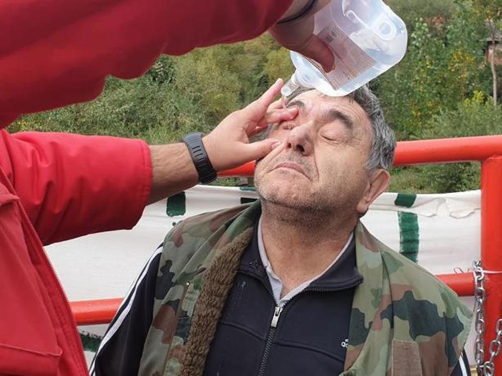 Jedan od meštana Toplog Dola prima terapiju posle biber-spreja