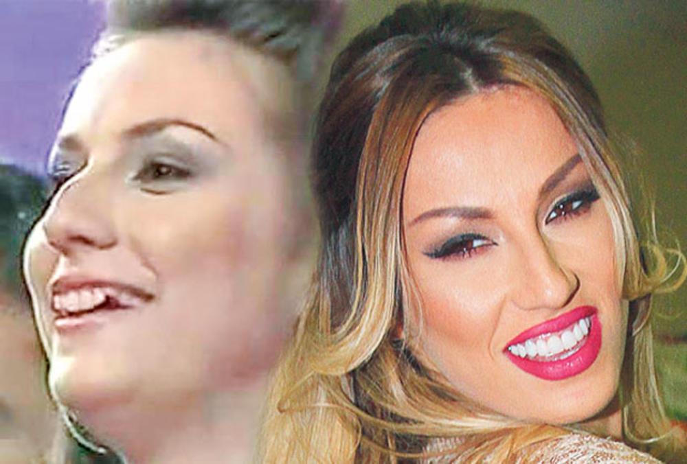 VELIKA TRANSFORMACIJA RADE MANOJLOVIĆ! Osmeh je promenio sve! (FOTO)