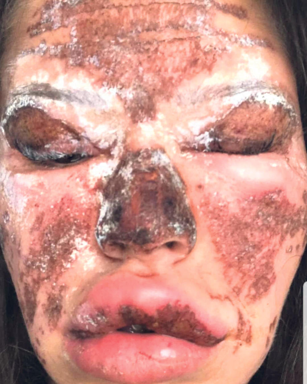 Strašne Lice nakon tretmana kod OM