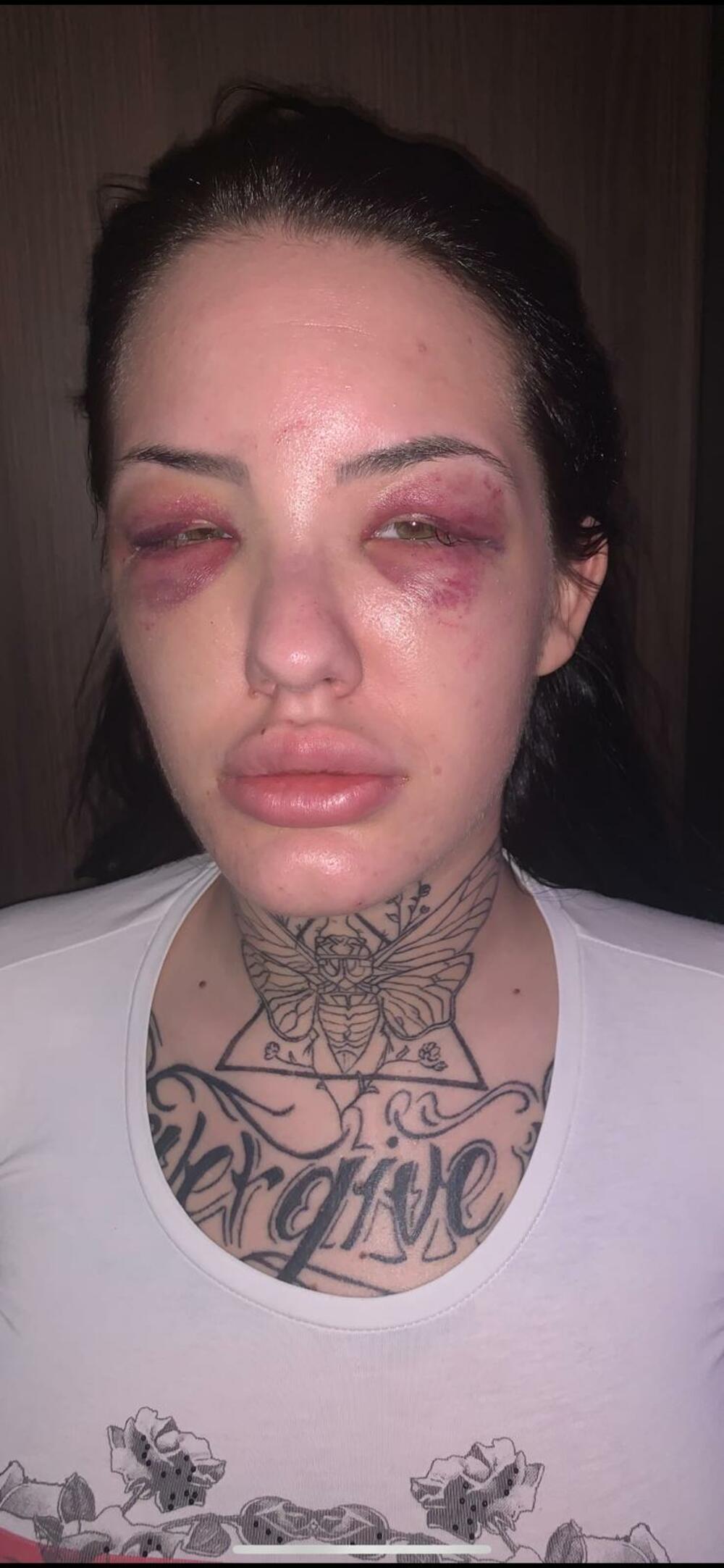 Sara Plavšić, najbolja prijateljica Tijane Ajfon je prebijena